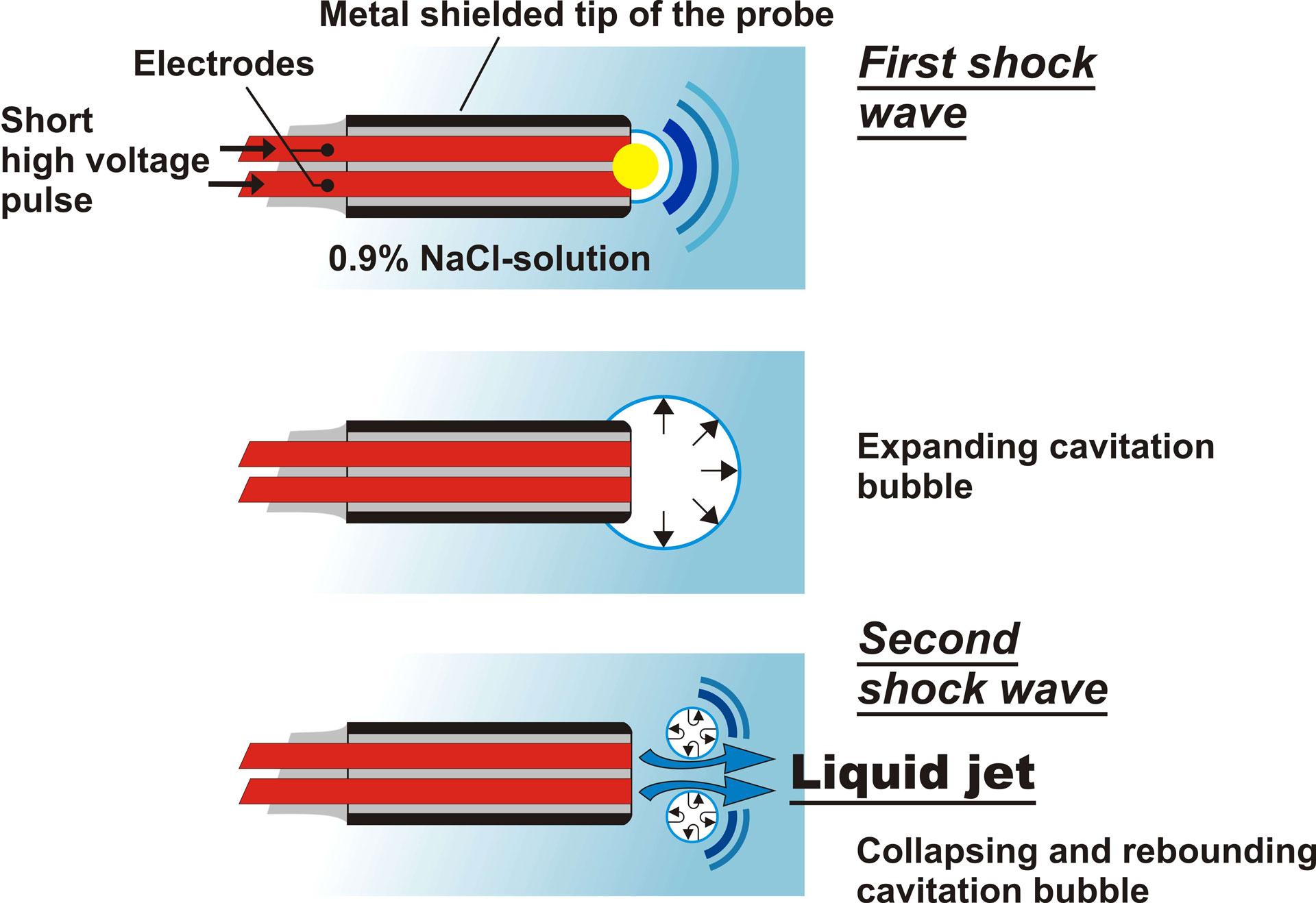 EHL (Electrohydraulic Lithotripsy) | Walz Elektronik F(x) Electric Shock